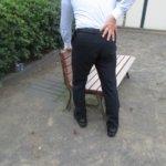 症例 硬膜外ブロック後の腰痛と下肢のしびれ(交感神経の異常亢進の例)・・・船橋市のオステオパシー整体